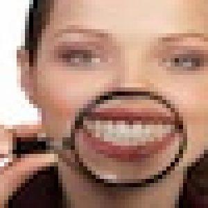 Bleaching – Zahnaufhellung bei der Zahnarztallianz Hamburg