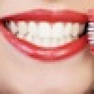 Parodontosebehandlung bei der Zahnarztallianz Hamburg