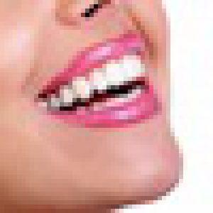 Prophylaxe und PZR bei der Zahnarztallianz Hamburg